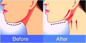 yoga-asan-for-reduce-neck-fat